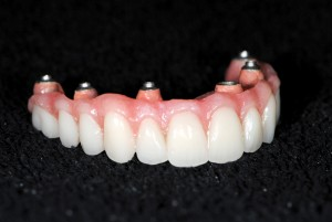 Naran Fig 31 Polished Denture
