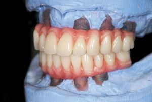 FIGURE 71. Polished dentures on articulator.