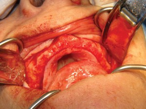 FIGURE 6. Surgical exposure of maxillary ridge.