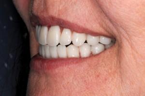FIGURE 34. Full smile with upper & lower frameworks.