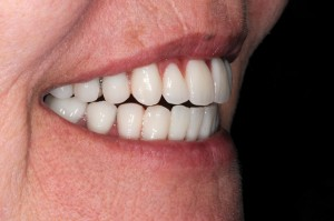 FIGURE 36. Right lateral smile.