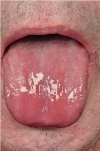 Millar Image1 Atrophic glossitis secondary to iron deficiency seen in an alcohol dependent patient.