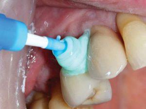 """FIGURE 12. Insert PerioTwist between teeth twisting """"clockwise""""."""
