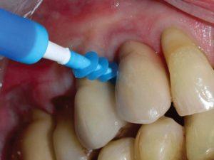FIGURE 9. PerioTwist cleaning between teeth.