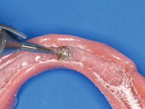 FIGURE 6. Clinic case courtesy of Dr. Wolfram Bucking.