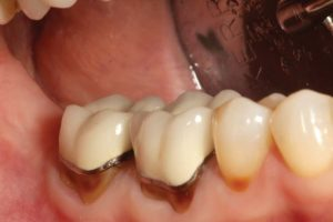 FIGURE 1. A preoperative facial view of old PFM restorations on tooth numbers 46 and 47. Recurrent decay and facial abfraction have necessitated replacement of these restorations.
