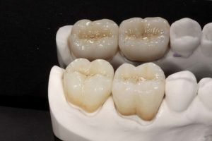 FIGURE 8. The completed ArgenZ and SLM Captek restorations are shown. These restorations were fabricated by Mr. Vincent Devaud, CFC, MDT of the Smile Design Center, Beverly Hills, CA.