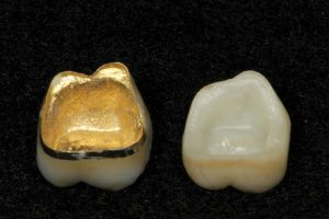 FIGURE 9. An intaglio view is shown of the two restorations comparing the zirconium and SLM Captek inner surfaces. Note the Captek gold lingual collar on tooth number 46 that will extend in to the subgingival areas to help control plaque accumulation.