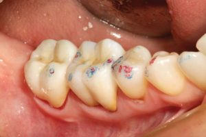 """FIGURE 18. Occlusion is rechecked after cementation. A good dispersion of """"B"""" (holding) contacts of approximately equal size and intensity are seen in red on both natural and restored teeth."""