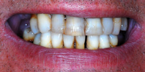 "Pre-treatment ""smile"" view"