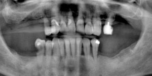 Pre-treatment panoramic radiograph