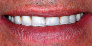 "Post-treatment ""smile"" view"