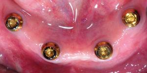 Definitive Locator abutments in mandible