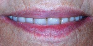 "Post treatment ""smile"" view"