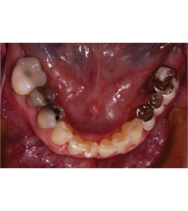 Dynamic Surgical Guidance to Facilitate Dental Implant Placement: A Case Report