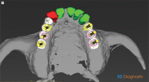 Volume render of prosthetic planning and implant position from occlusal view, red coloured tooth is an existing implant.