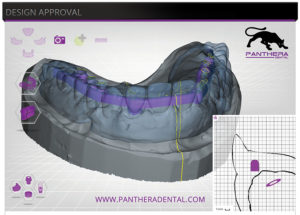 Screenshot of CAD CAM implant supported bar at the design stage.