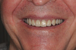 The patient's smile shown with the final prosthesis in place.