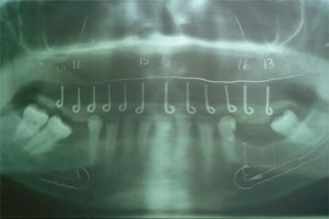 Panoramic radiograph with the template being used as a radiological guide. Template being used as a radiological guide.