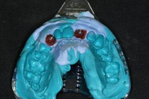 Impression of implants for restoration.