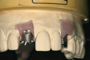 Soft-tissue model with Atlantis custom abutments.