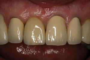 26 month follow-up of abutment-supported crown #11.