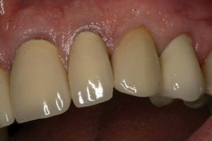 26 month follow-up of abutment-supported crown #23.
