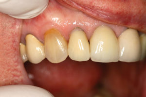 Tooth #12 after heroic recementation of crown.