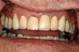 Pre-treatment condition, including heroic recementation of #11. Note slight gingival discrepancy between #11 and 12.