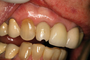 Soft tissue maturation three months after implant placement.