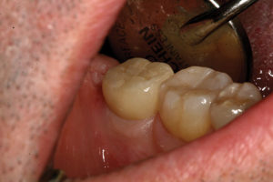 Eleven-month follow-up of implant-supported crown #47. Note how soft tissue adaptation resembles that on the adjacent natural tooth.
