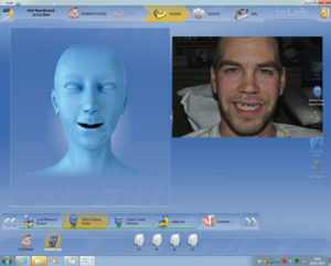 The next step in our lab component with CEREC software is to upload the full face smile photo that we took after preparation of the teeth, and transfer the intercanthi width (far corner of eye to corner of other eye in mm) to calibrate the photo to the digital impression as shown in Figures 11 and 12.