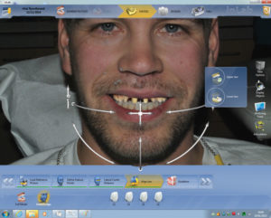 The full integration of the digital facial photo and digital impression is shown in Figure 13.