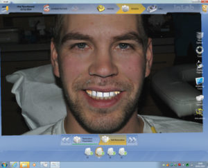 Figure 14 shows the final design of the crowns to be superimposed and manipulated on the full facial smile design photo of the patient (Fig. 14)