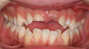 Figures 1 and 2 shows patient's full smile and retracted anterior view.
