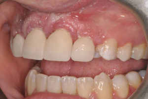 Figure 20 shows the untreated freshly milled crowns.