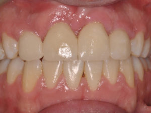 Final post-operative check of the restorations were done several months later when the patient returned to town for a visit , as shown in Figures 22, 23 and 24
