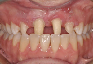 Figure 6 shows prepared teeth and uneven proximal spacing.