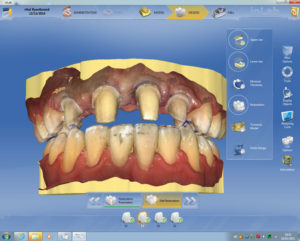 Figures 8 and 9 show occlusal and anterior scanned images from CEREC's OmniCAM.