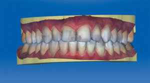 With the verification of the double buccal bite, guided scanning for the patient has been completed