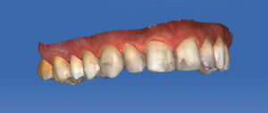 The completed maxillary and mandibular virtual models must be inspected for any discrepancies