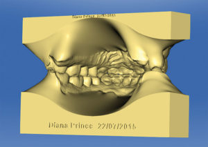 When the models are printed, the software physically prints onto the models the patient's name and date of the scan