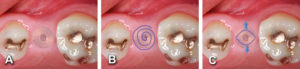 Implant to be uncovered (A) presents with two options depending on width of attached gingiva available. Wide band of attached gingiva will remain after removal of tissue over cover screw, the diode is utilizes in a spiral pattern starting at center until fully exposed (B). Narrow band of attached gingiva present, an elliptical cut i made with the diode and tissue is pushed buccally and lingually to preserve the attached gingiva (C).