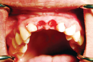 Occlusal view of the anterior maxilla demonstrating preservation of the papilla due to the provisional bridge.