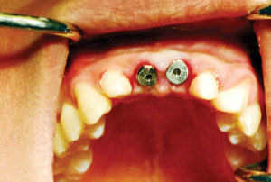 Healing abutments placed into the implants.