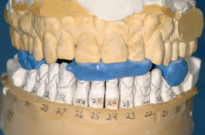 Frontal view of prepared mandibular teeth with three separate DeLar wax (DeLar Corp.) centric relation bite registrations in place mounted on SAMIII articulator (Great Lakes Orthodontics).