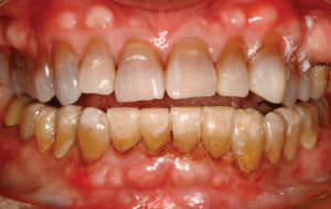 Frontal view of characterization of mandibular provisionals using Kerr Corp.'s Kolor + Plus kit and LuxaGlaze (DMG America).