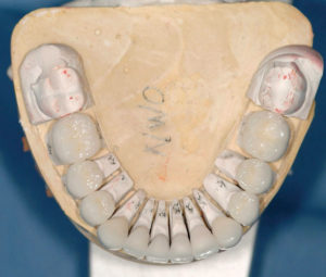 Occlusal view of mandibular Noritake CZR restorations (Kuraray Norataki Dental Inc.).