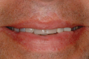 Frontal view of patient's smile.