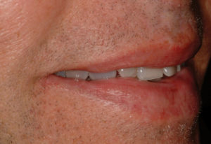 Right lateral view of the patient's smile.
